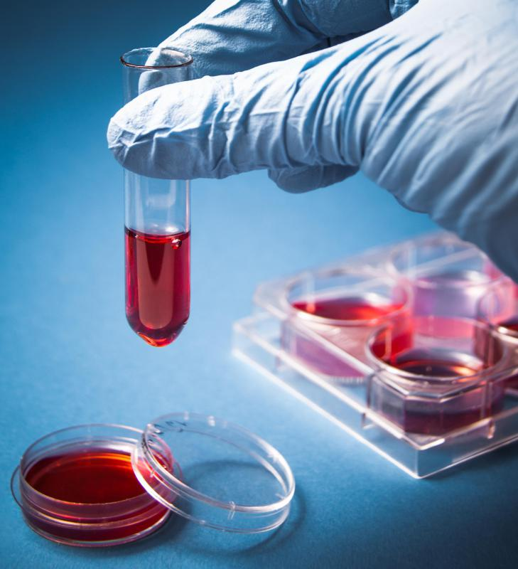 A forensic toxicologist may analyze blood for evidence of drug use.