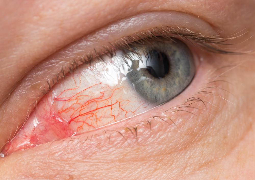Eye infections may cause epiphora.