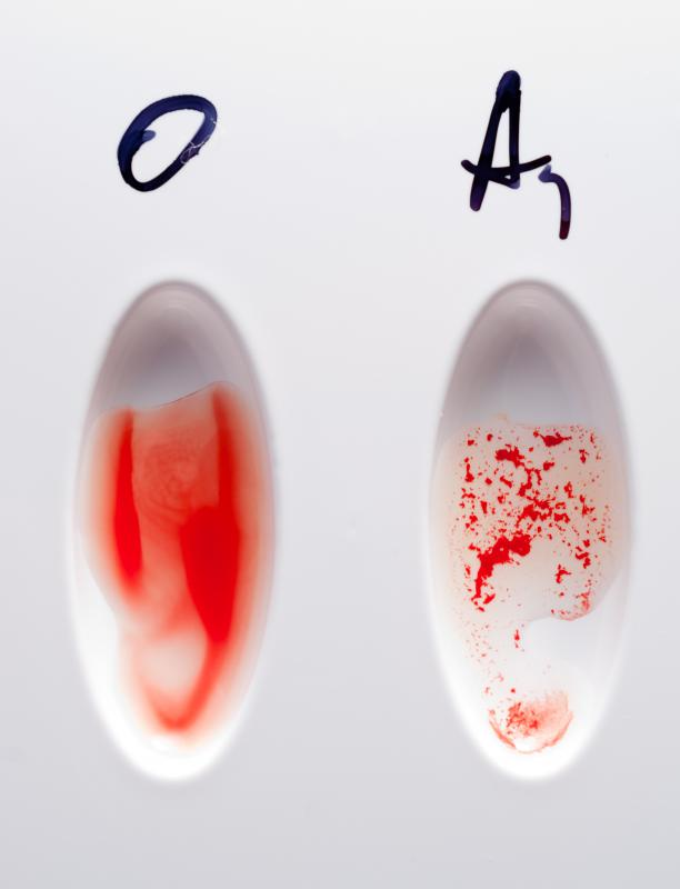 Two types of blood on a blood typing test card.