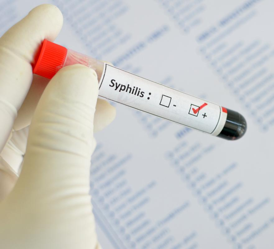 Syphilis is a common STD in women.