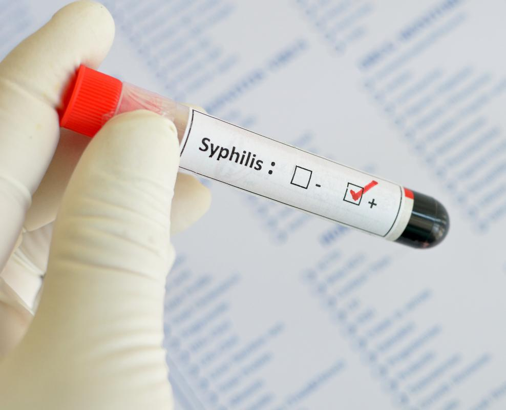 Syphilis is commonly treated with penicillin shots, with the number of  required shots determined by length of infection.