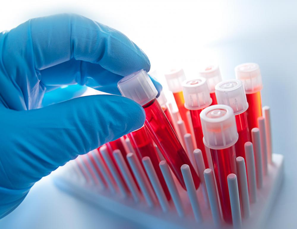 Hematology analyzers count the number of white and red blood cells in a sample of blood.