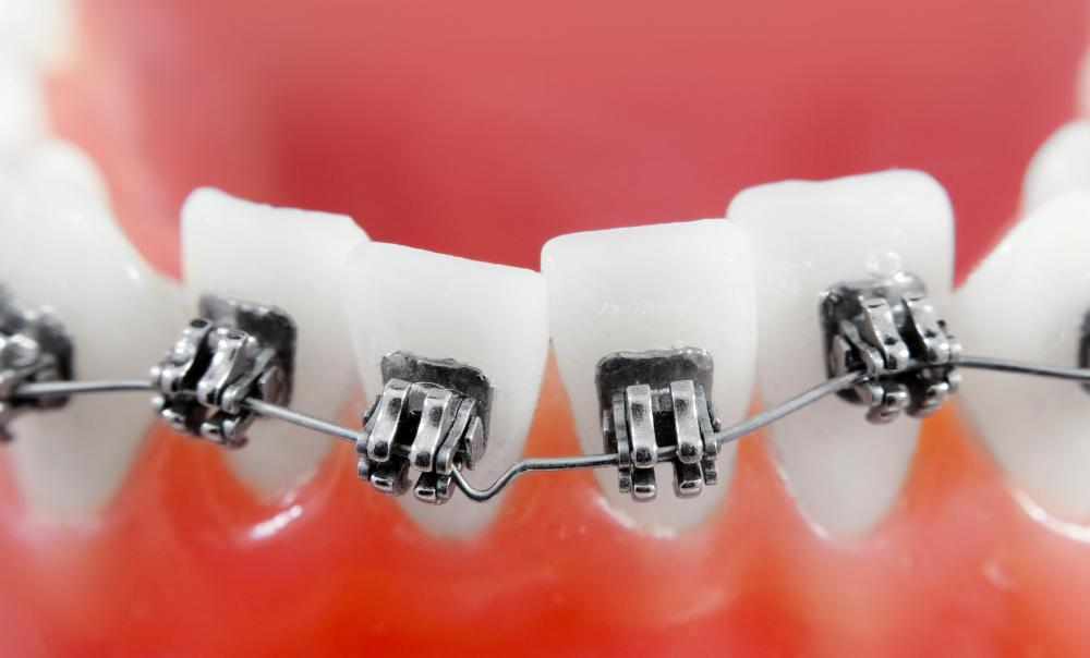 Orthodontic specialists straighten patients' crooked teeth using metal braces.