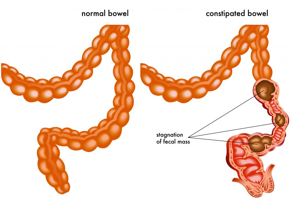 It may become difficult to have regular bowel movements when a person is constipated.