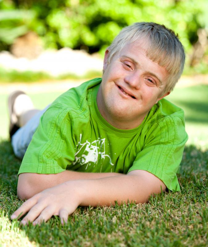 Many children with Down syndrome have mild to severe mental disabilities.