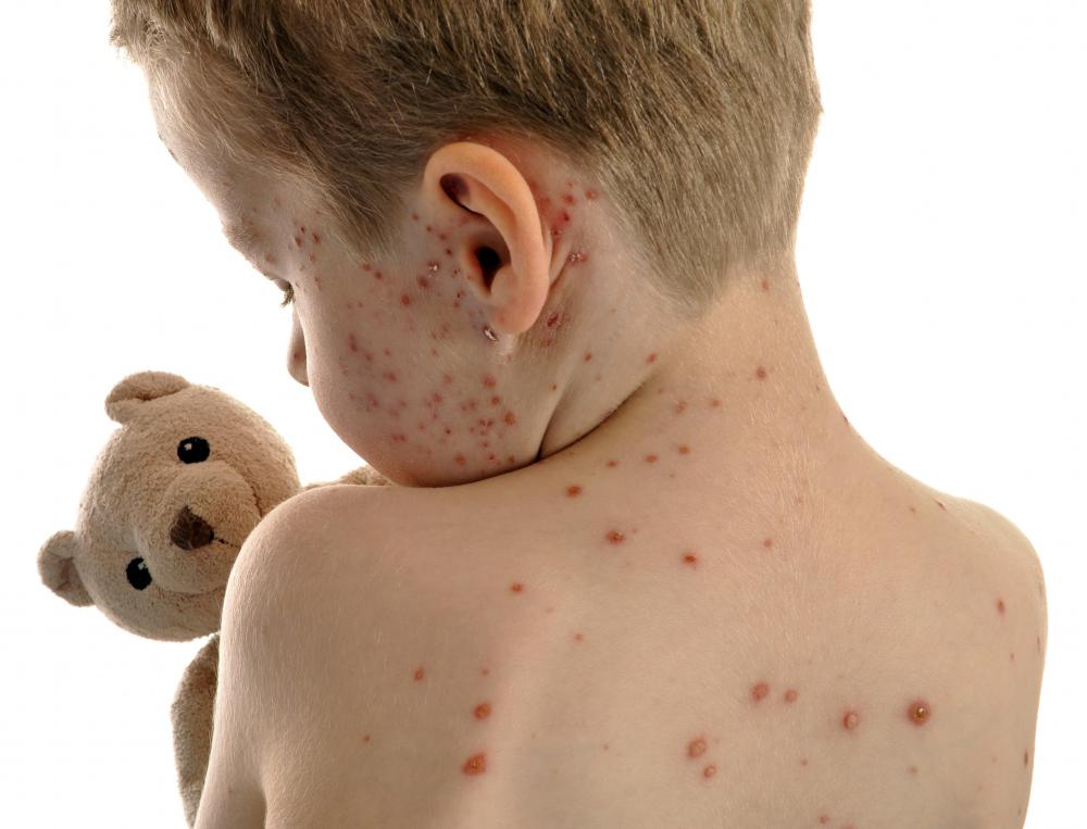 A boy with chickenpox.