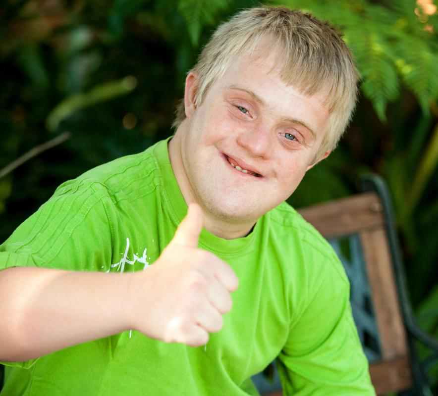 Children with Down syndrome often have distinct facial features.