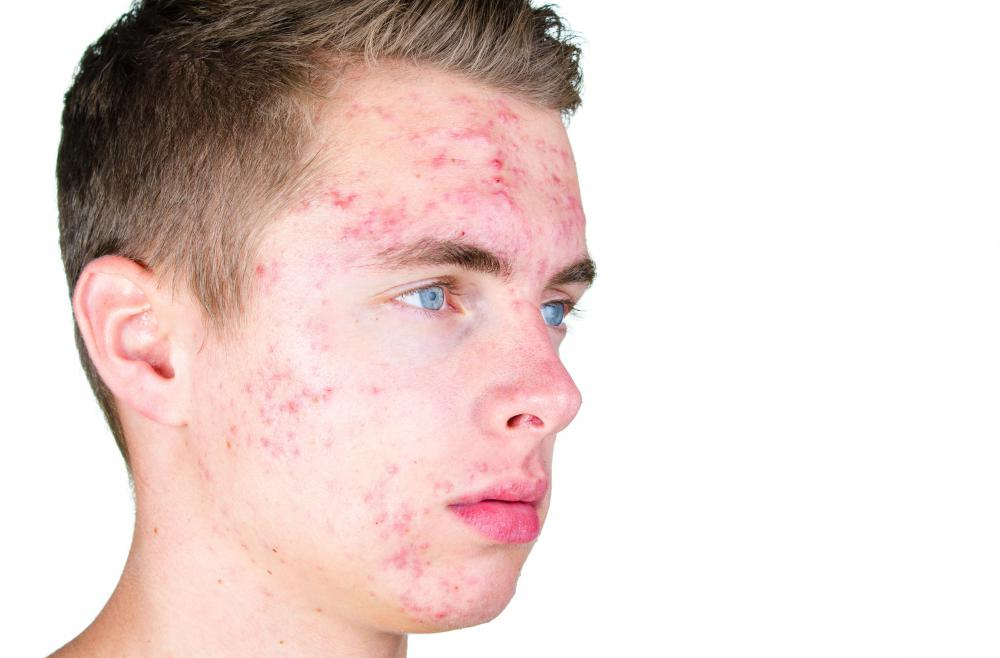 There are various methods available to help reduce acne.