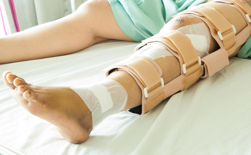 A patella fracture must typically be treated by first immobilizing the leg.