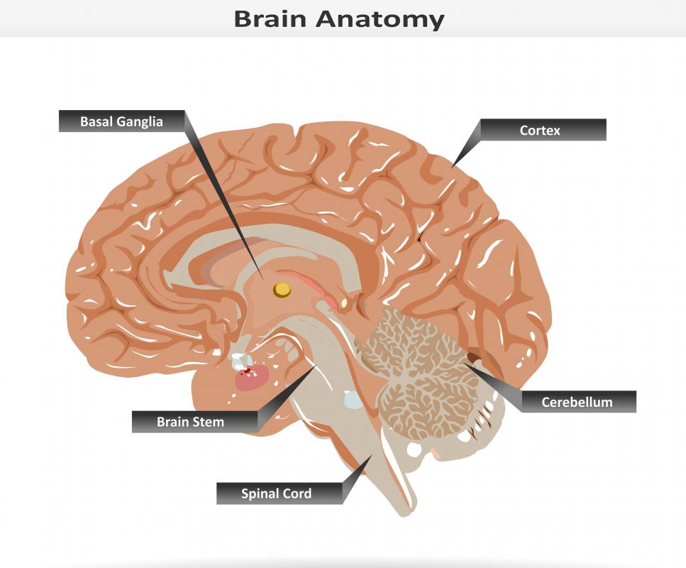 Infarction Brain Stem Between The Brain Stem And