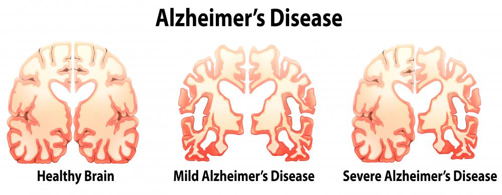 An FDG-PET scan may be used in suspected cases of Alzheimer's disease.