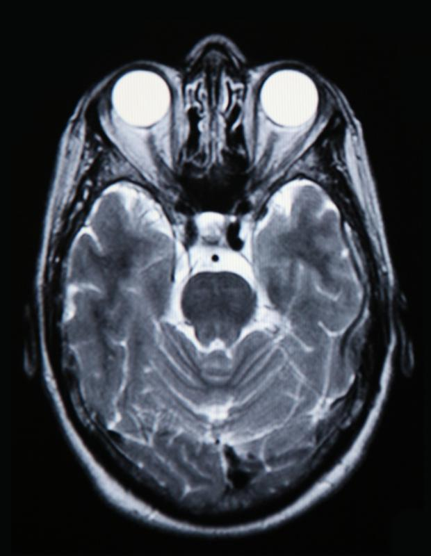 A brain CT scan uses images to create a three-dimensional depiction of the brain.