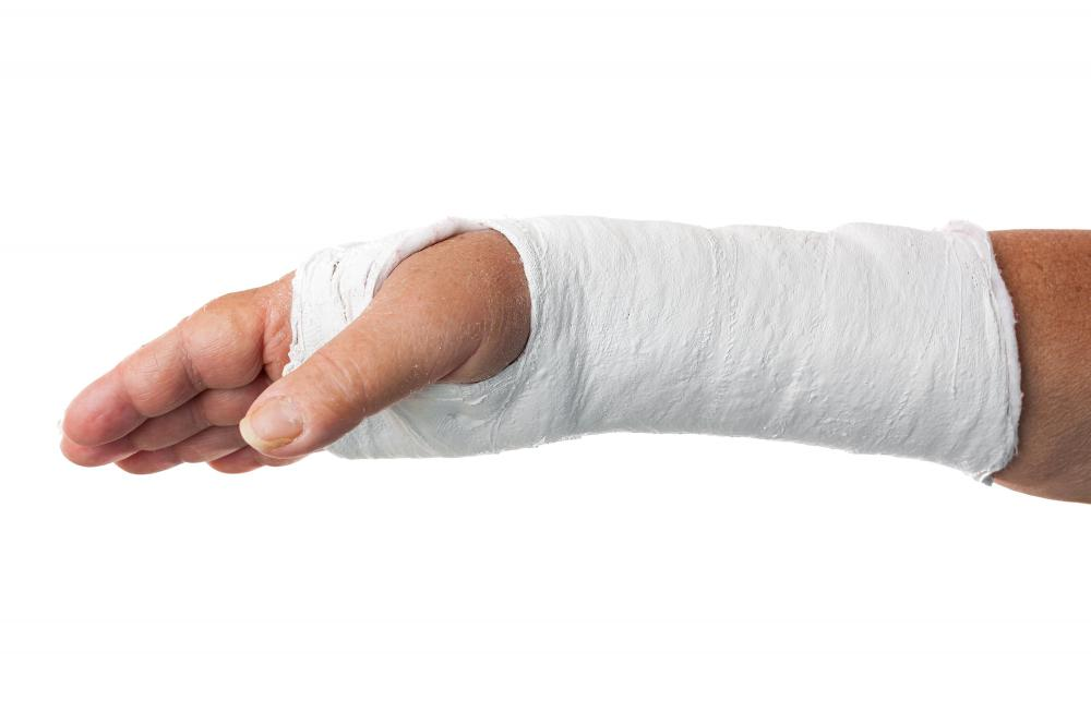 Plaster of Paris is used to make plaster casts for broken hands and wrists.