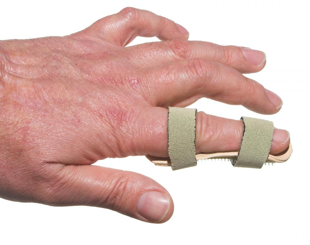 A broken finger is typically set in a splint to prevent movement.