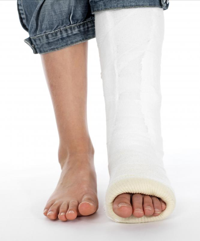 The leg is often set in a cast after fibula surgery.