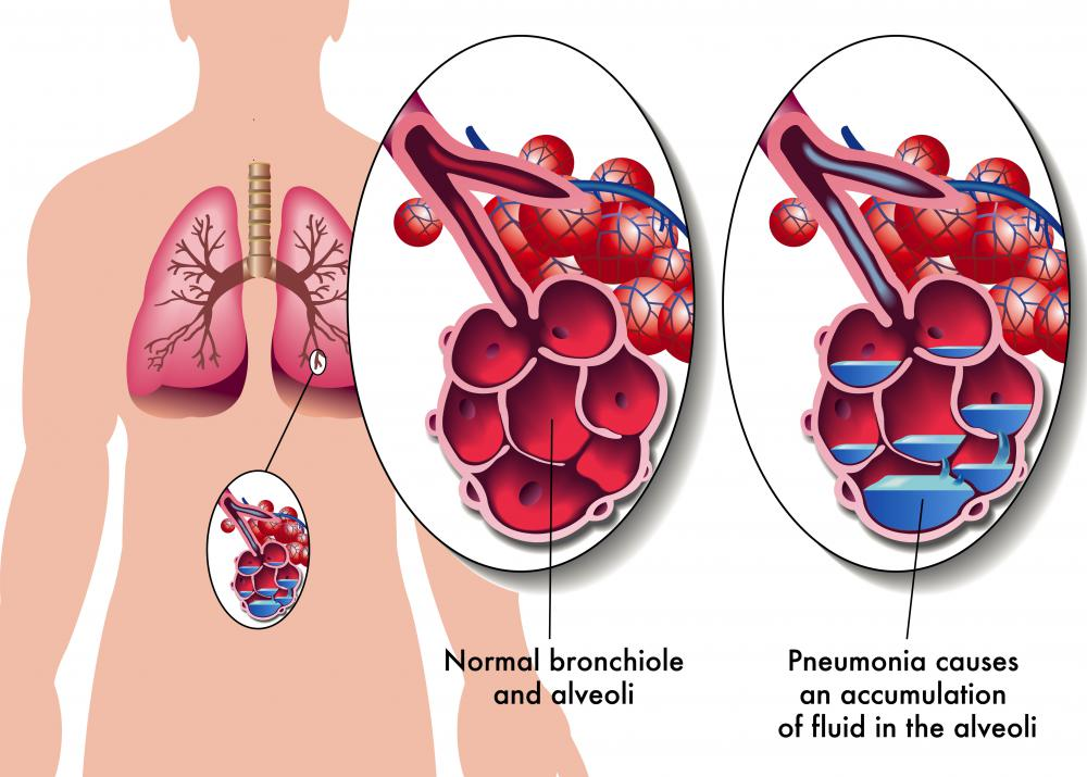 Bronchioles are located at the end of the brochi.