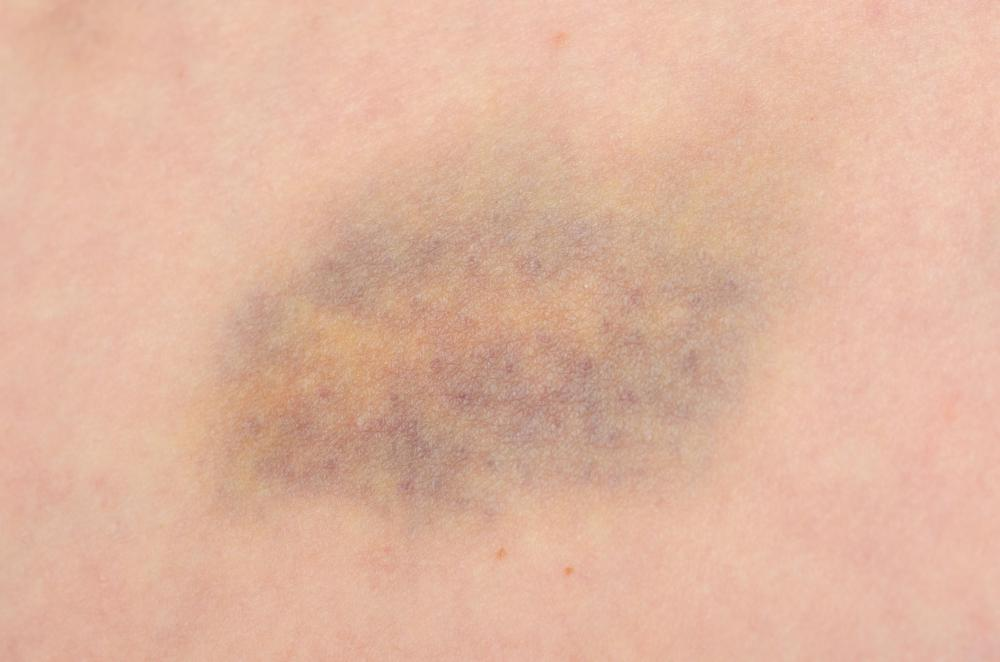 Bruises appear when blood leaks from damaged capillaries.