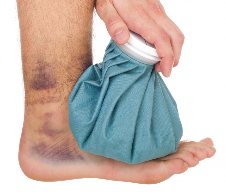 Ice can help reduce swelling right after an ankle injury.