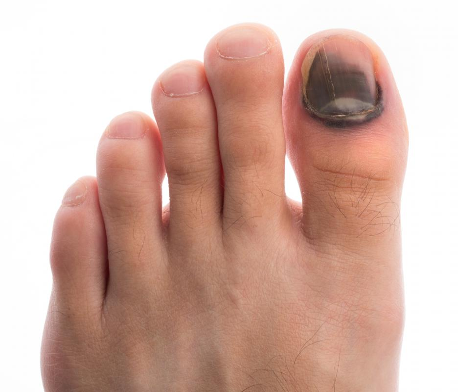 What Causes Black Toenails? (with pictures)