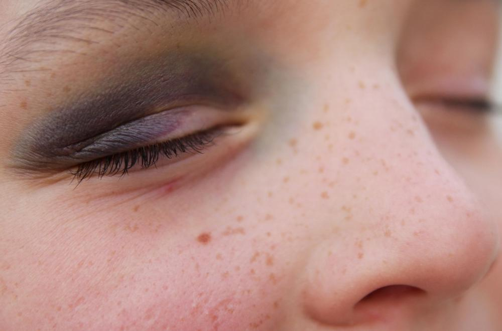 Black eyes may be a sign of child abuse.