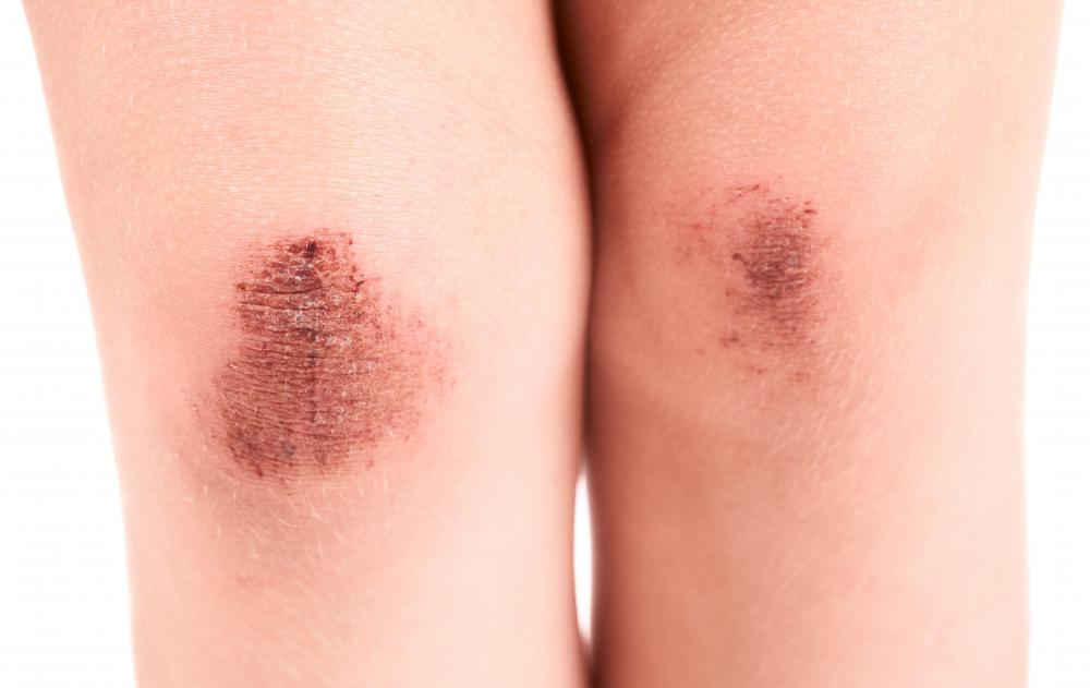 Having too few platelets may cause excessive bruising.