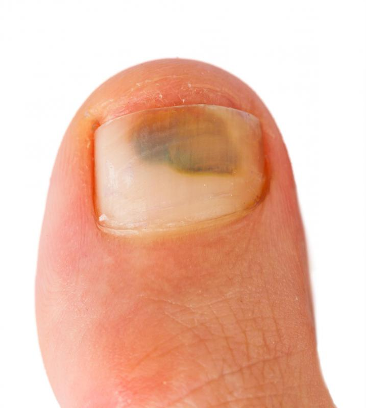 A person with a bruised toenail.