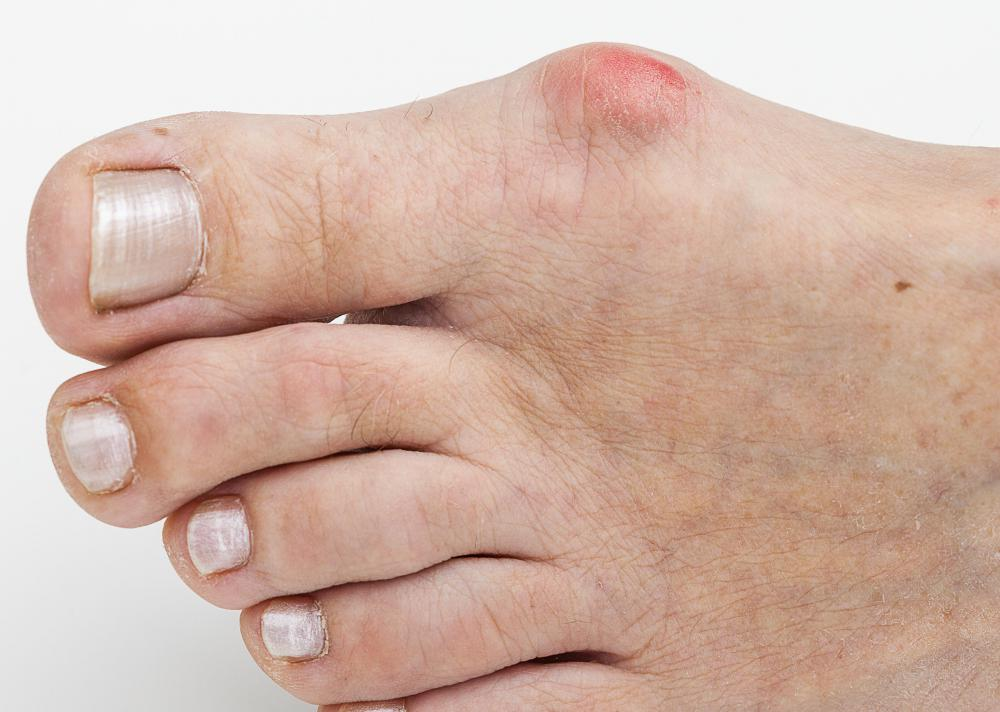 Foot care products can include treatments for bunions.