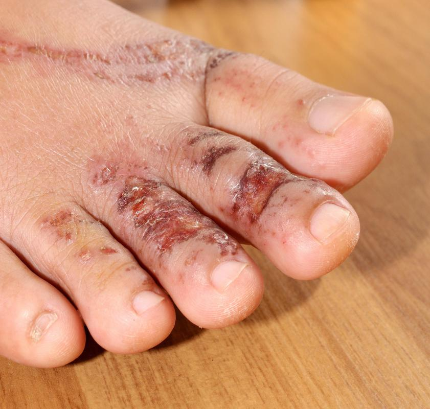 Diabetics may be prone to developing infections following foot injuries.