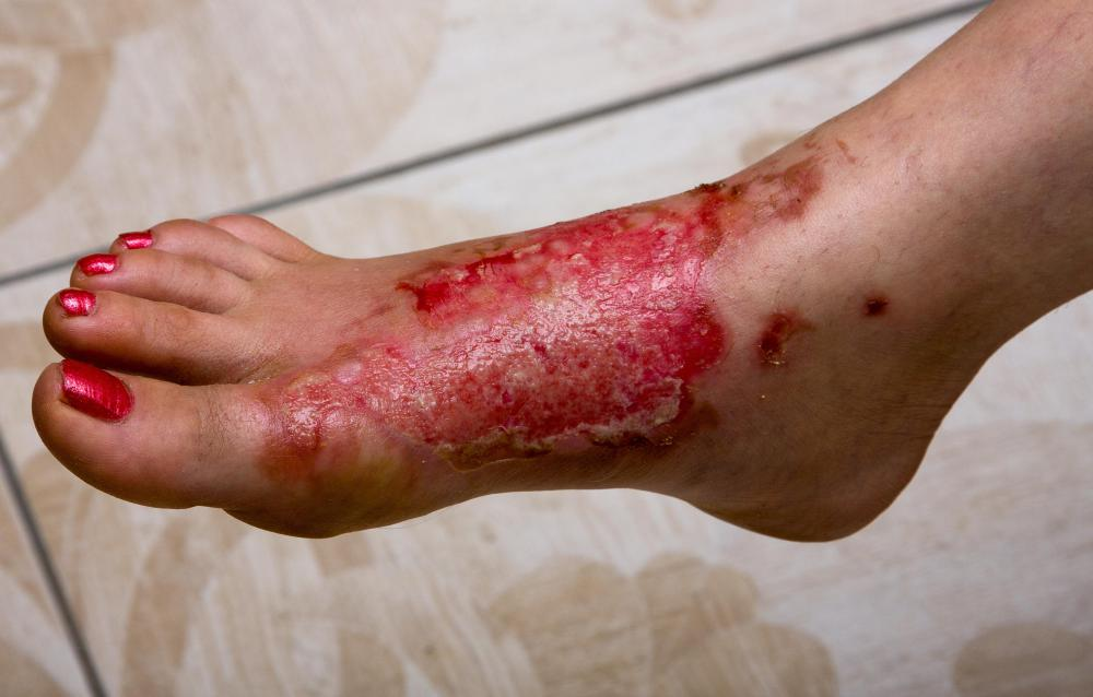 the different degree of burns What are the different types of burns home / burn wounds / what a what are the different types of burns august 26, 2015 by advanced tissue 0 3 burn wounds can cause lasting changes for a second degree burn, hospitalization may be necessary too.