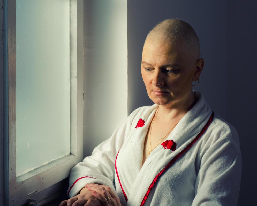 Hair loss is a common side effect of chemotherapy.