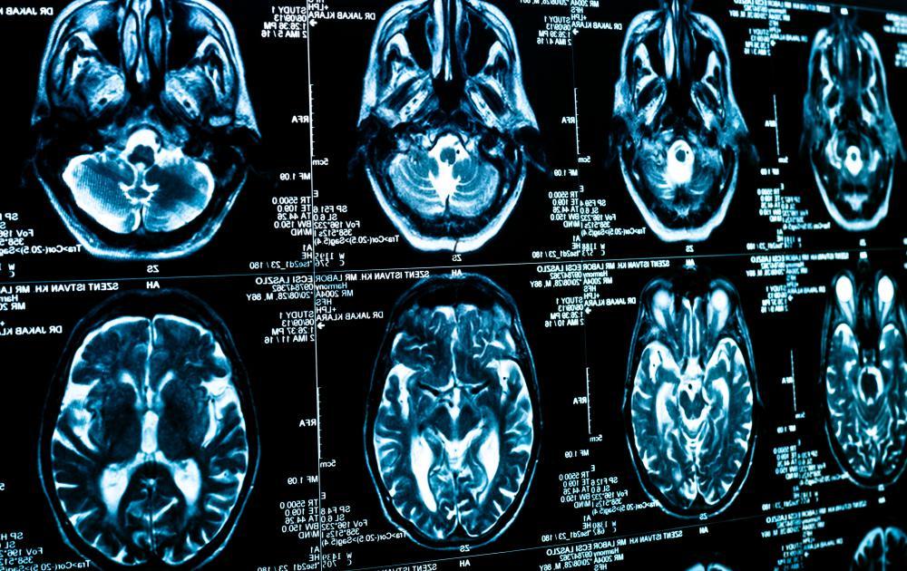ct scan hersenen met contrastvloeistof