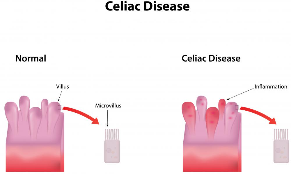 In people with celiac disease, damage is done to the villi in the intestinal lining which is caused by the body's autoimmune response to eating gluten.