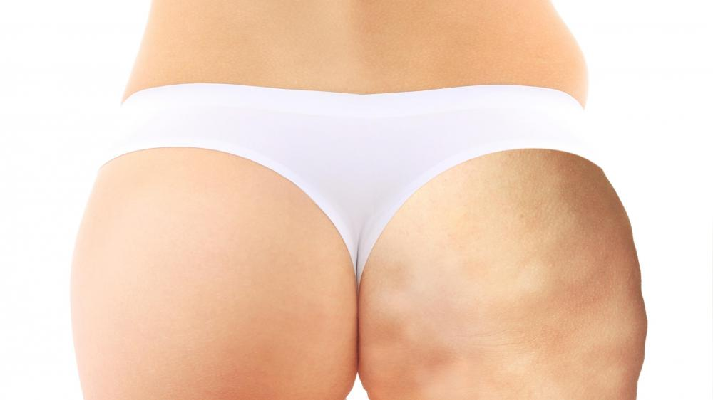 Effective Natural Treatment For Cellulite With 2 Ingredients