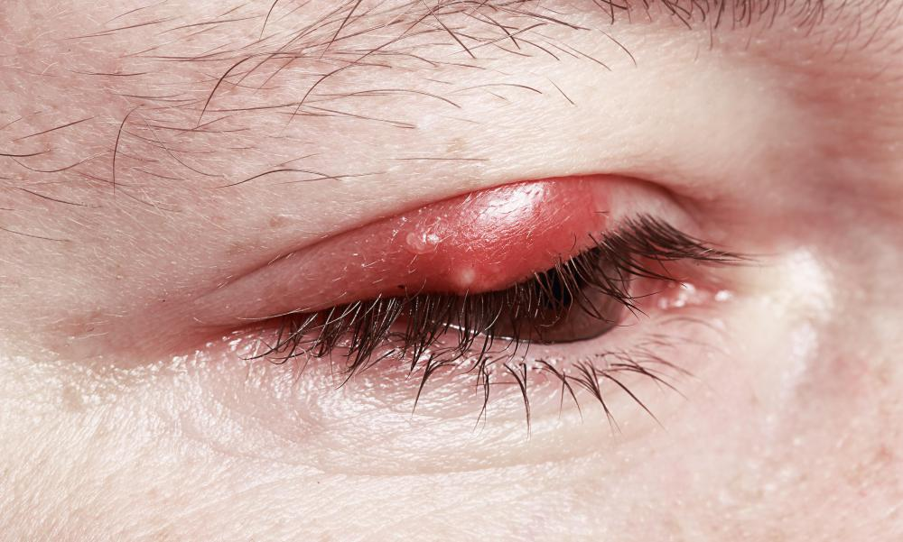 Sty (Stye) Treatment, Home Remedies & Pictures