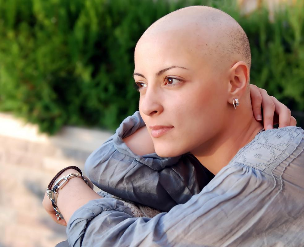 The hair loss associated with chemotherapy may start soon after a patient's initial round of treatment.