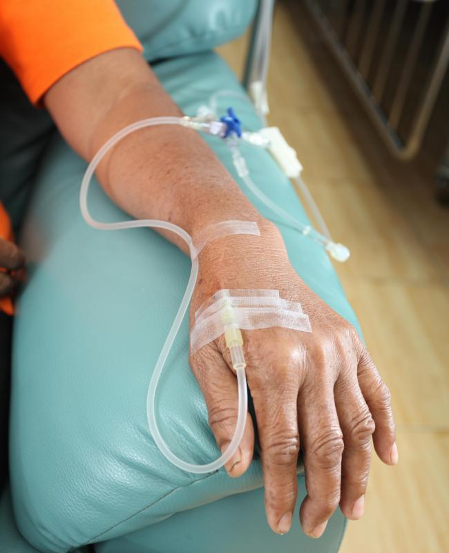 Chemotherapy can be administered directly into a vein.
