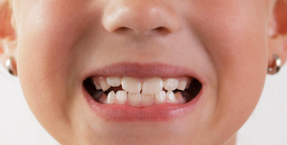 Children start to lose their baby teeth by about age 6.