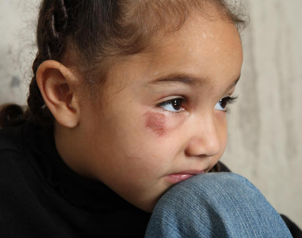 Custody laws are meant to protect children from abusive situations.