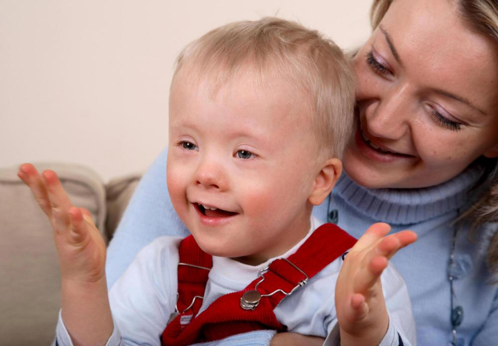 Whereas Down syndrome may be diagnosed at birth, Mosaicism may not be diagnosed until after the child's first birthday.