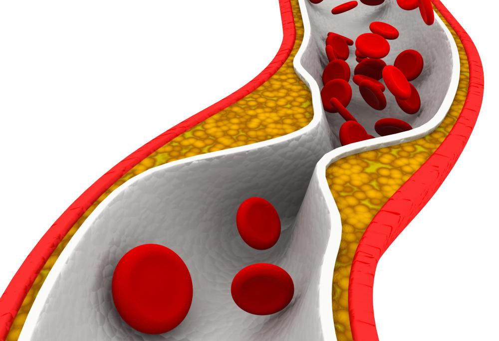 The SMA rarely develops cholesterol plaque.