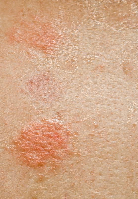 Common Skin Disorders - Healthline