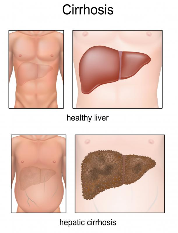Cirrhosis of the liver can lead to portal hypertension, which typically causes caput medusae.