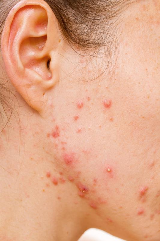 Dermatology includes the treatment of acne breakouts.