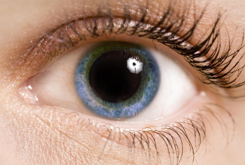To get the best view using an ophthalmoscope, the patient's pupil may needed to be dilated.