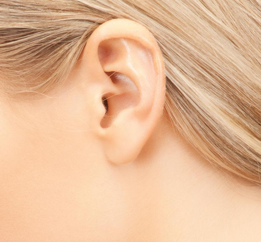 Tinnitus refers to a ringing sound heard in the ear without an external source.