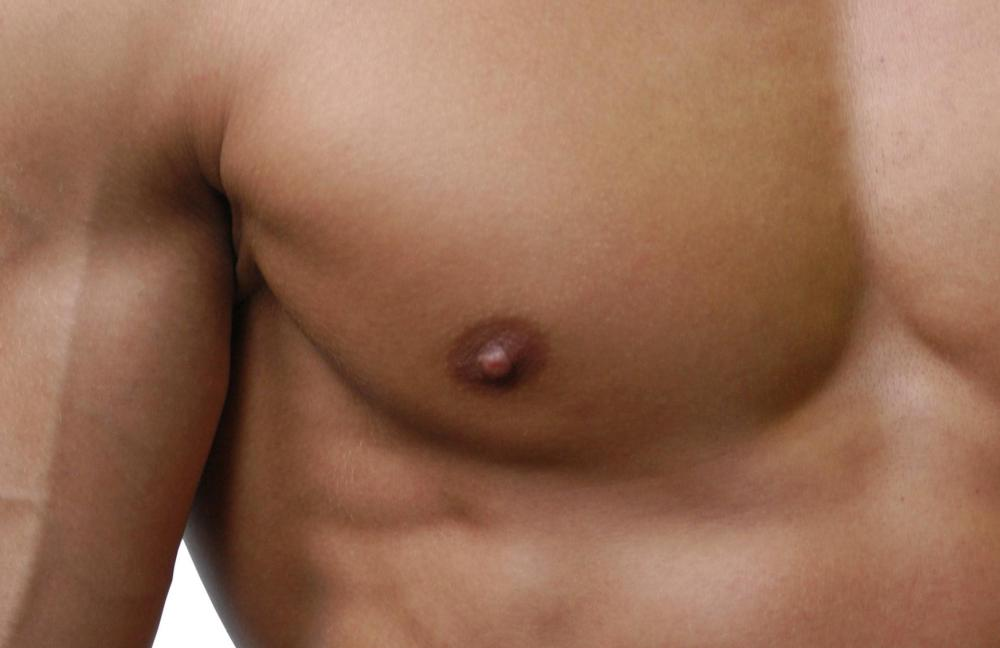 Normally, each human breast only has one nipple.
