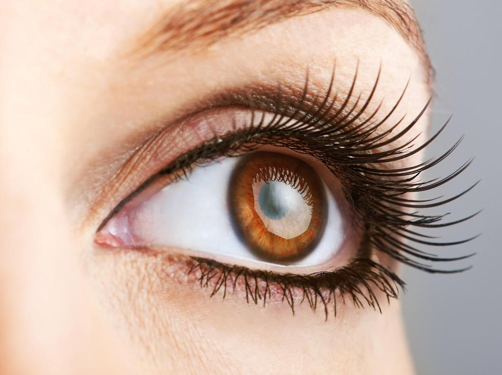 People with brown eyes have pigment at the back of the iris and in the body of the iris.