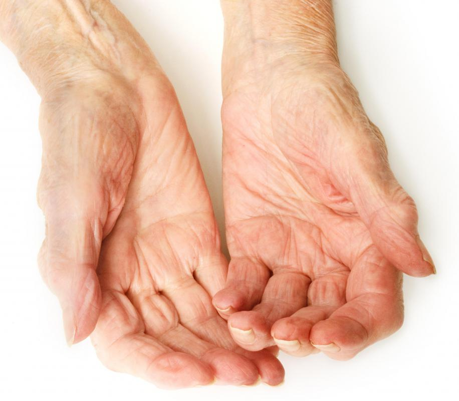 Arthritis is a disease that affects connective tissue.