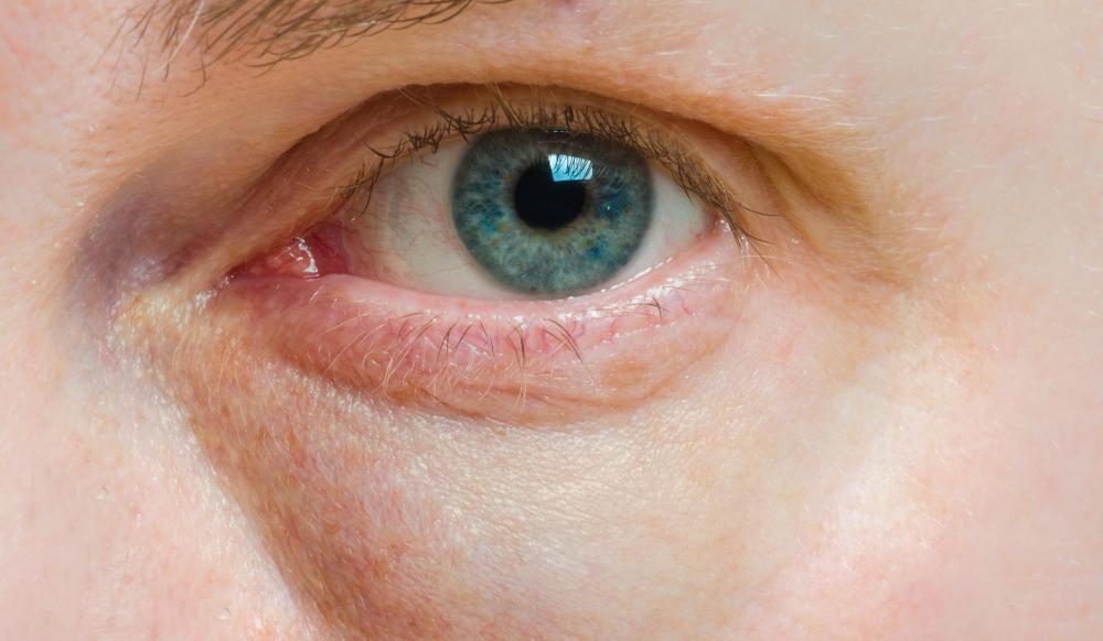 Allergic shiners resemble black eyes, but are caused by allergies instead of broken blood vessels from injury.