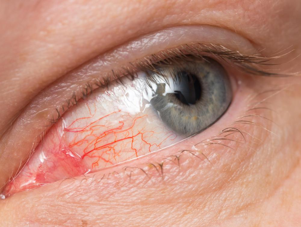 Infectious conjunctivitis results in inflammation and redness of the bulbar conjunctiva.